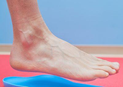 Déformation en pied plat pied creux