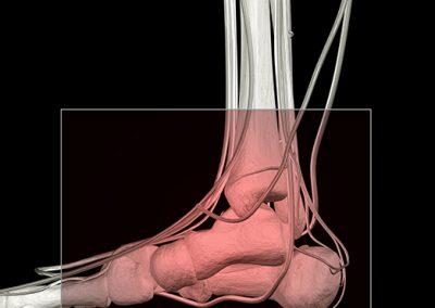 Arthrose de la cheville et de l'arrière-pied
